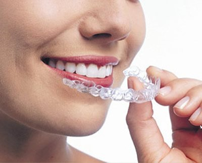 Orthodontics Cavan | Church Street Dental and Implant Clinic