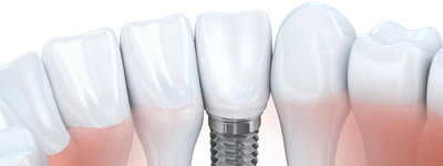 find out more about Implants at Church Street Dental