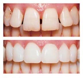 Veneers Cavan | Church Street Dental & Implant Clinic