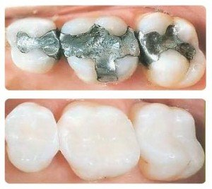 White Fillings at Church Street Dental and Implant Clinic Cavan