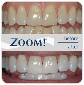 Teeth Whitening at Church Street Dental and Implant Clinic Cavan