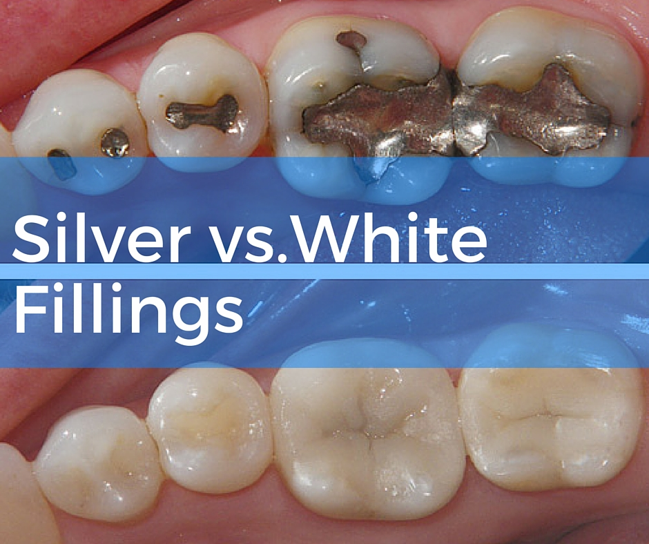 find out more about Mercury Fillings at Church Street Dental