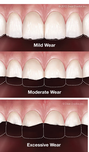 find out more about Effects of Clenching or Grinding your Teeth at Church Street Dental